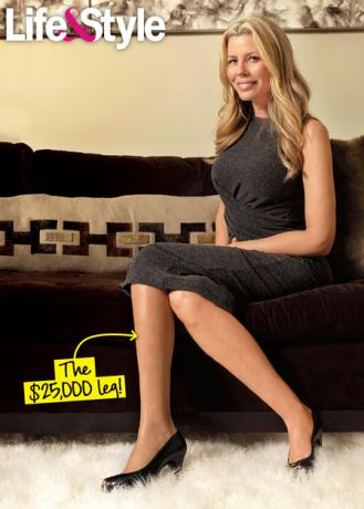 """Real Housewives of New York City star Aviva Drescher describes the gruesome accident that took her left foot when she was just 6 years old as """"something out ..."""